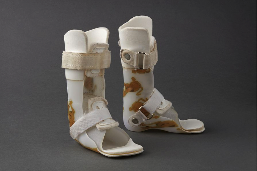 Custom 3D Printed Orthosis Helps Child Walk