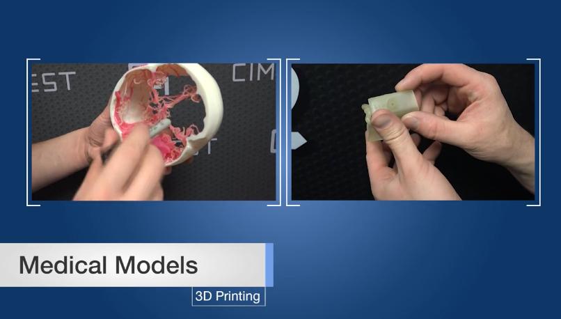 3D Printed Medical Models